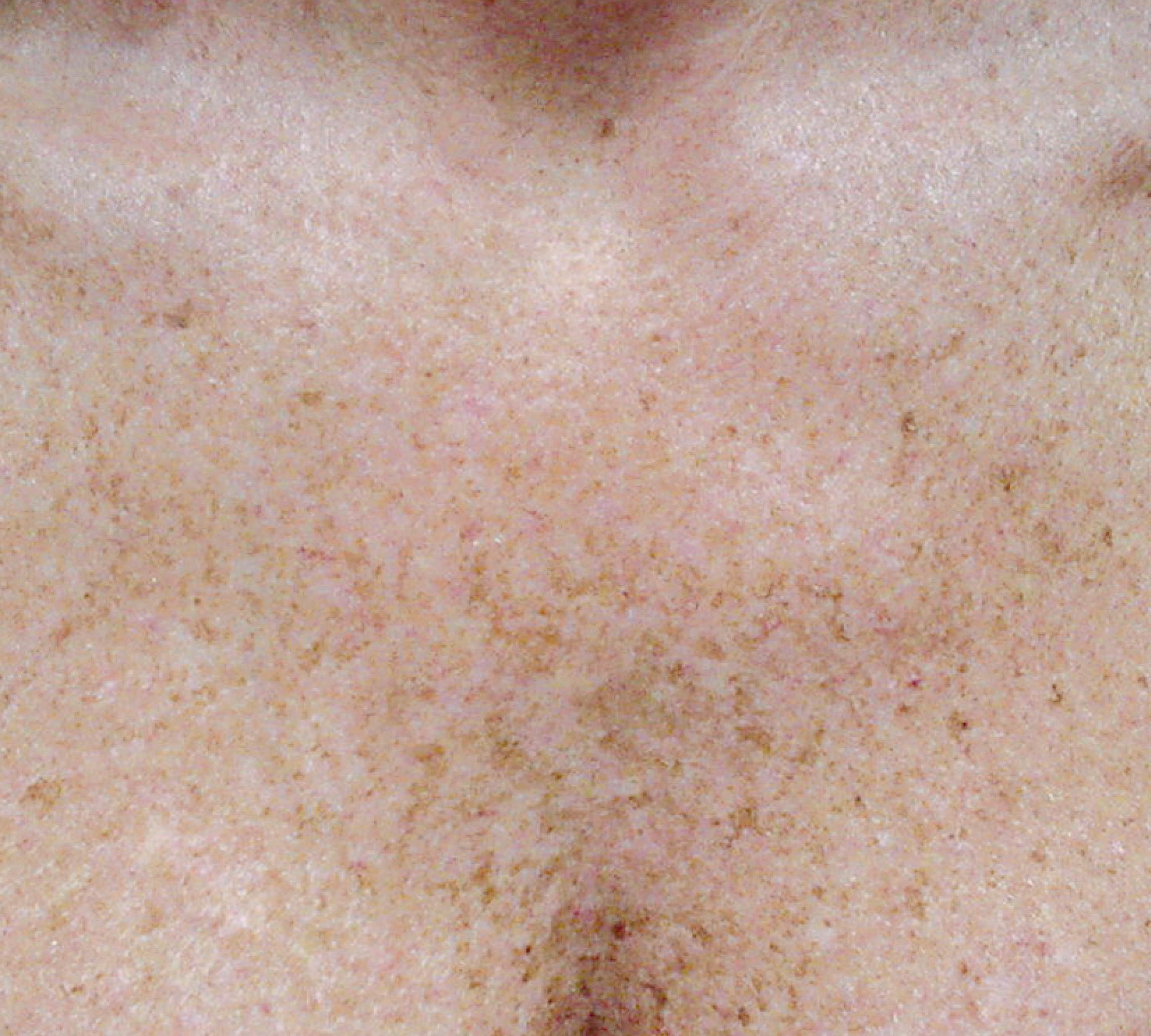 laser hair removal Bristol