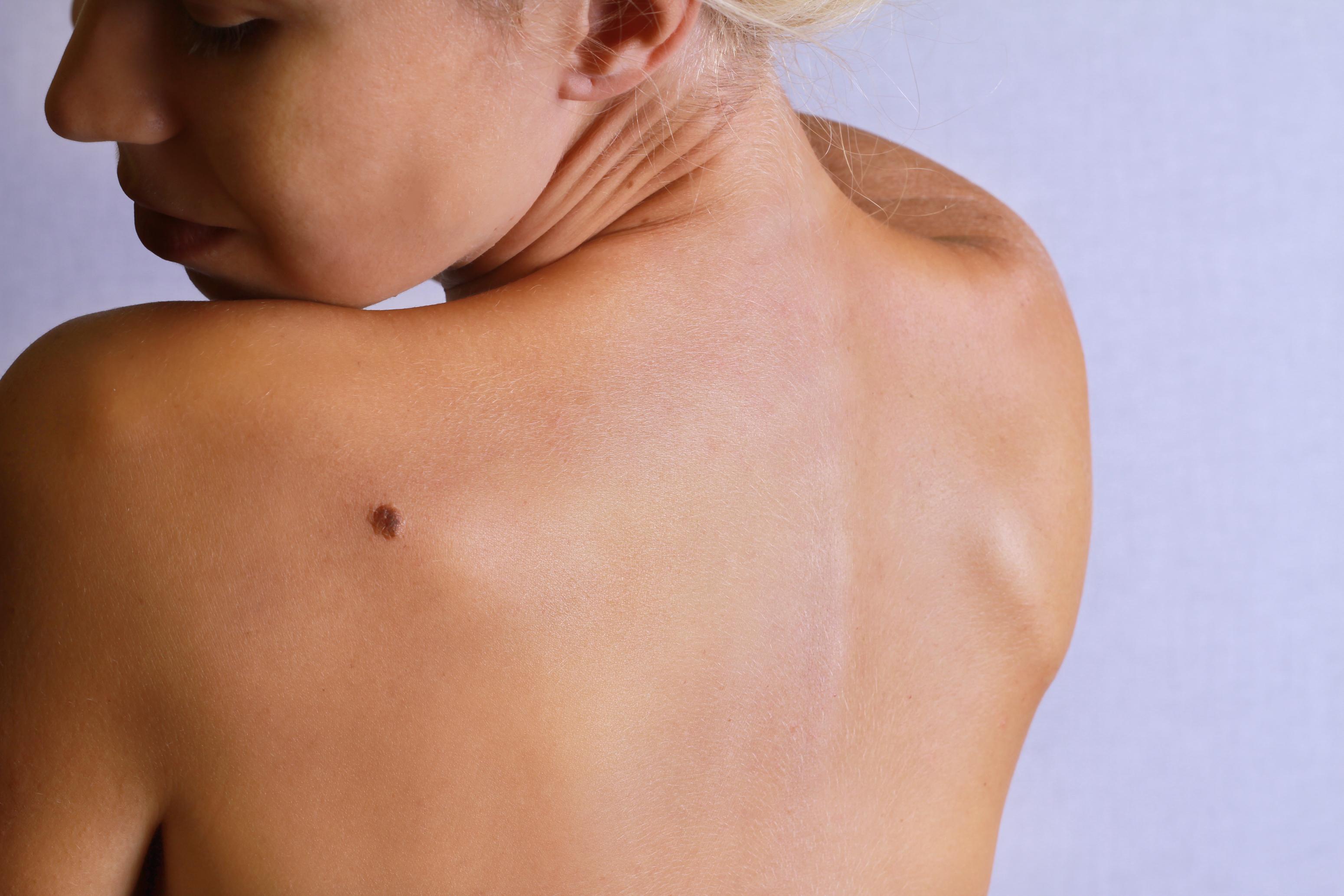 Bristol skin tag removal