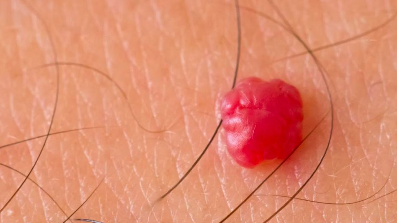 cherry angioma removal Bristol