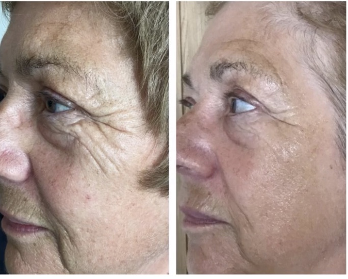Bristol skin rejuvenation