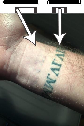 laser tattoo removal Bristol