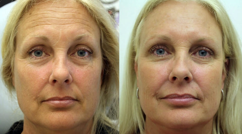 skin rejuvenation Bristol