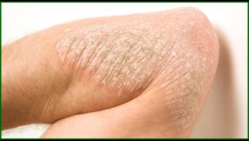 Cryotherapy Psoriasis and Eczema Treatment